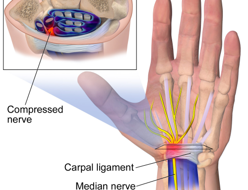 Carpal Tunnel and Workers' Compensation